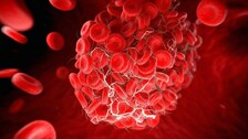 Covid Can Trigger Blood Clots In arms, Finds NRI Scientist