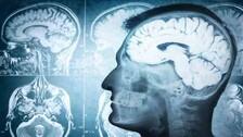 Eastern India's First Brain Bank To Start At AIIMS Bhubaneswar