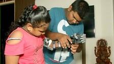 Odisha Class 10 Boy Designs Robotic Hand, Gifts It To Divyang Girl